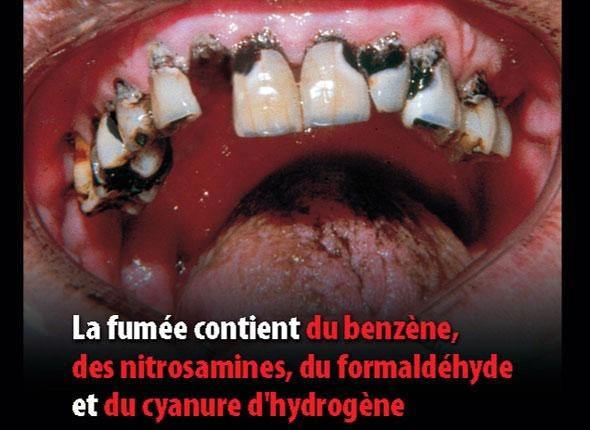 cigarette-dents.jpg